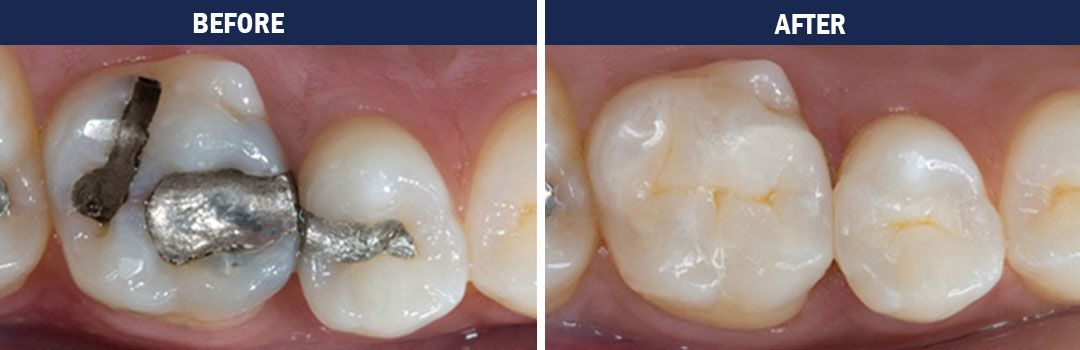 trenton-dentist-white fillings-before-and-after