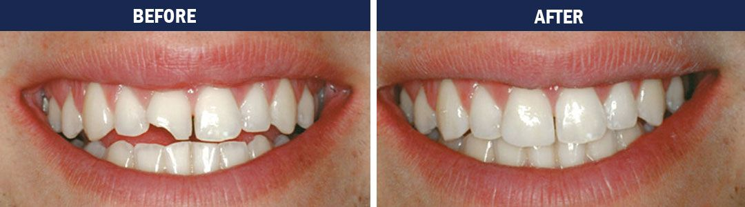 Cosmetic Bonding - before and after pic