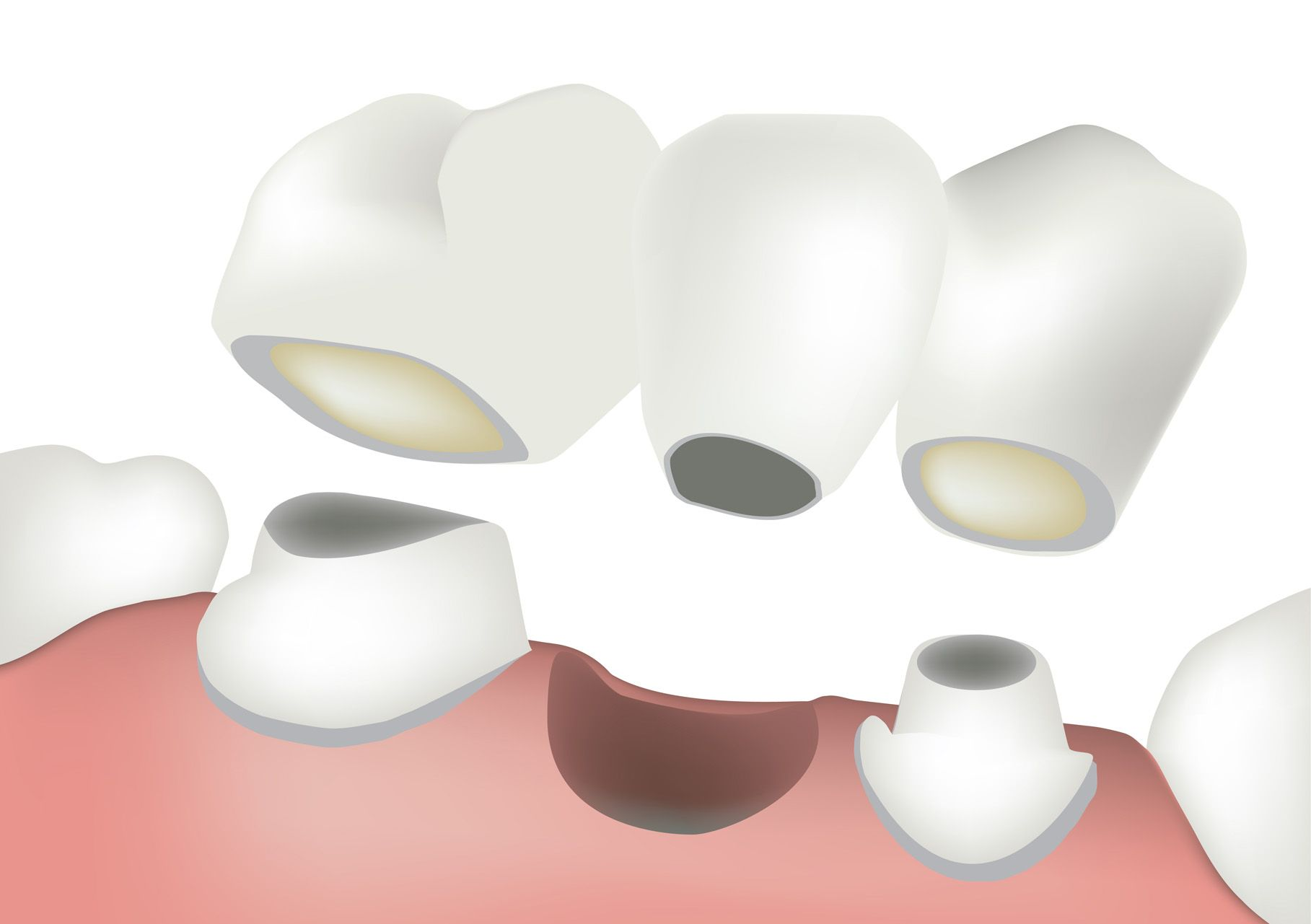 Crowns and Bridges - Dental Bridge2