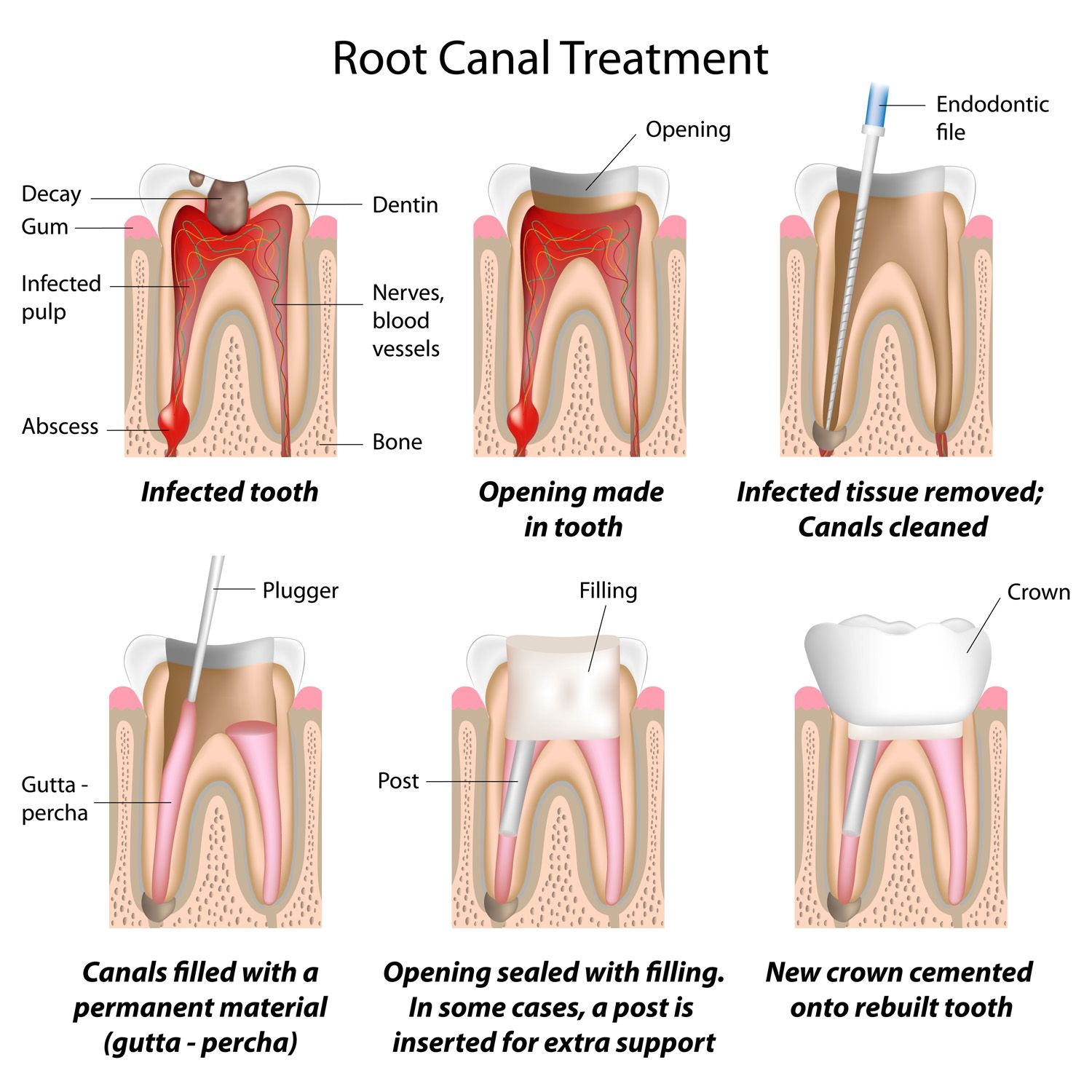 Root Canal Therapy - Illustration