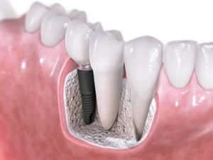 Dental crowns and implants Dr. Oldfin