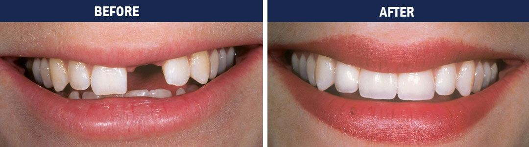 Dental Implants - before-and-after