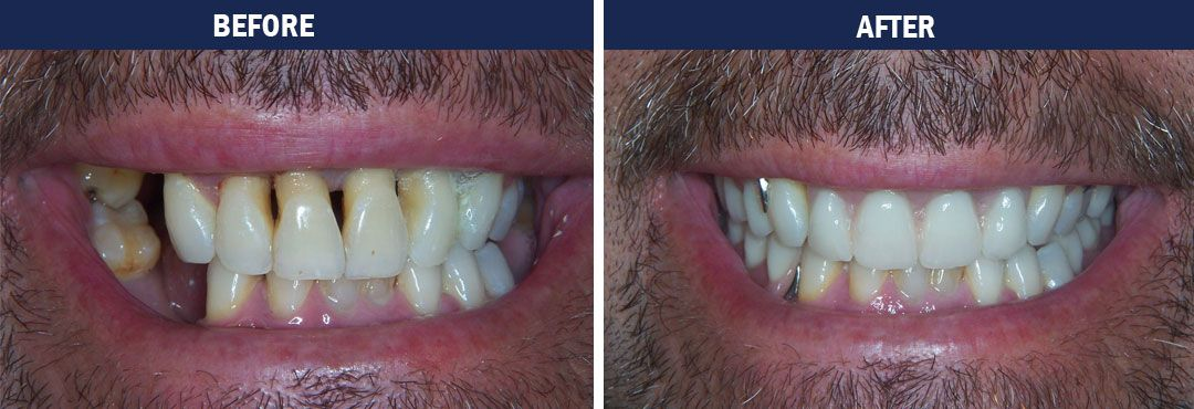 Full Mouth Rehabilitation - before-and-after photo