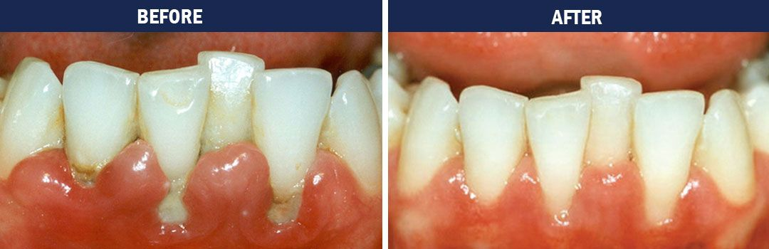 Gum Disease Therapy - Before and After Photo