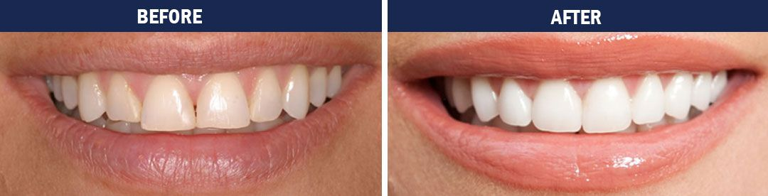 Porcelain Veneers - before and after photo