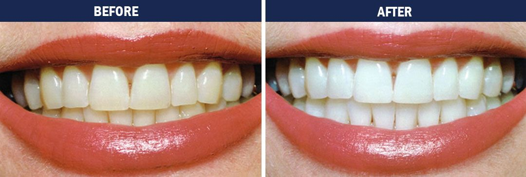 Teeth whitening - before-and-after